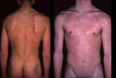 сыпь при кишечных инфекциях