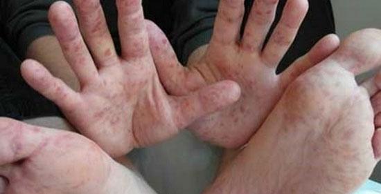 симптомы энтеровируса