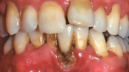 воспление тканей у зуба