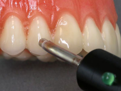 диагностика связочного аппарата зуба