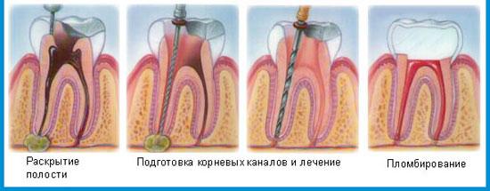 лечение связочного аппарата зуба