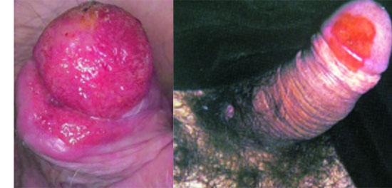 эритроплазия