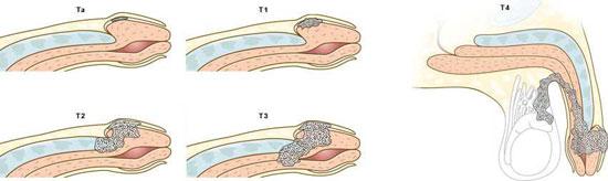 сталдии рака полвого члена