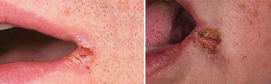 тещины на губах