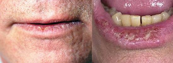 вопаление губы