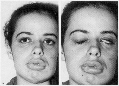 синдром Россолимо-Мелькерссона-Розенталя.