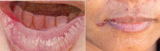 воспаление на губах