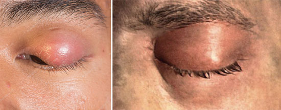 воспаление на глазу