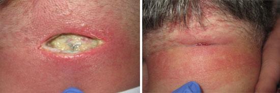 лечение карбункулеза
