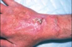 Симптомы и лечение аспергиллеза у человека