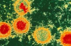Вирус Эпштейна–Барр-инфекция