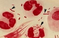 Симптомы, признаки и лечение гонореи у мужчин