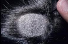 Грибок кожи головы: как распознать и лечить