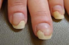 Грибок ногтей на руках: проявления и лечение в домашних условиях