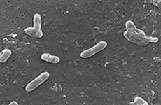 Характеристика возбудителя коклюша Bordetella pertussis и особенности эпидемиологии заболевания