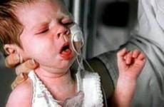 Признаки и симптомы коклюша у детей и взрослых