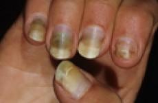 Клинические симптомы и современные подходы к лечению синегнойной инфекции