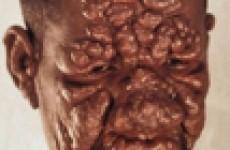 Вопросы диагностики, лечения и профилактики лепры