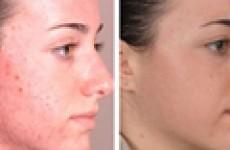 Как лечить демодекоз на лице