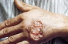 Вопросы диагностики, лечения и профилактики лейшманиоза