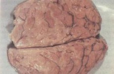 О менингококковой инфекции