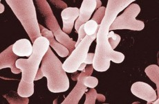 Кишечная палочка, бифидобактерии, лактобактерии — основа микрофлоры кишечника