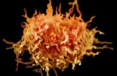 Что такое Mycoplasma hominis
