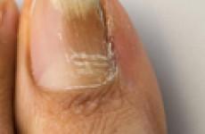 Что надо знать о грибке ногтей на ногах