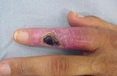 Симптомы, диагностика и лечение остеомиелита