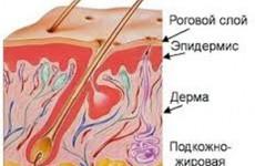 Проявления и лечение стрептодермии и стафилококковой пиодермии