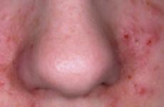 Все о себорее и себорейном дерматите на лице