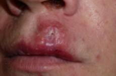 Сифилис на губах, носу, лице и голове