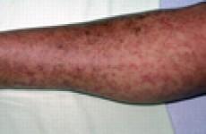 Симптомы трихинеллеза у человека