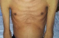 Признаки и симптомы острого и хронического гепатита С
