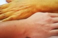 Признаки и симптомы гепатита А у взрослых и детей