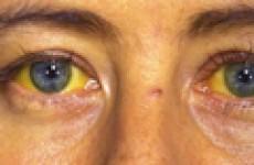 Симптомы и признаки вирусного гепатита В