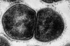 Возбудитель скарлатины. Особенности эпидемиологии и патогенеза