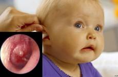 Проявления стафилококковой инфекции у детей