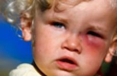 Все о токсокарозе у взрослых и детей