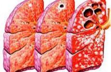 Как развивается туберкулез