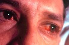 Симптомы и лечение хламидиоза у мужчин